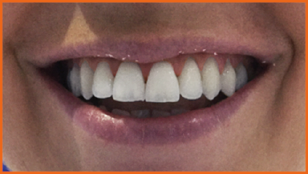 Dentist in London, Best Dentist in London, Dentist in Richmond, best Dentist in Richmond, Dental Care London, Dentalcarelondon, Dentalcare London, DentalCare London, Philips Zoom Teeth Whitening, Sapphire Braces,Teeth Whitening, Teeth Whitening kit, Teeth Whitening Cost, Braces, Sapphire Braces, Dentalcarelondon, Dentalcare London, Dentist in Richmond UK.