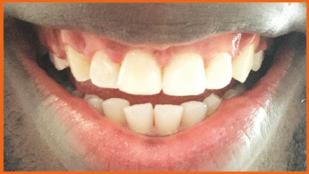 Dentist in London, Best Dentist in London, Dentist in Richmond, best Dentist in Richmond, Dental Care London, Dentalcarelondon, Dentalcare London, DentalCare London, Philips Zoom Teeth Whitening, Sapphire Braces,Teeth Whitening, Teeth Whitening kit, Teeth Whitening Cost, Braces, Sapphire Braces, Dentalcarelondon, Dentalcare London, Dentist in Richmond UK.